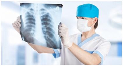 Рентген (рентгенография)